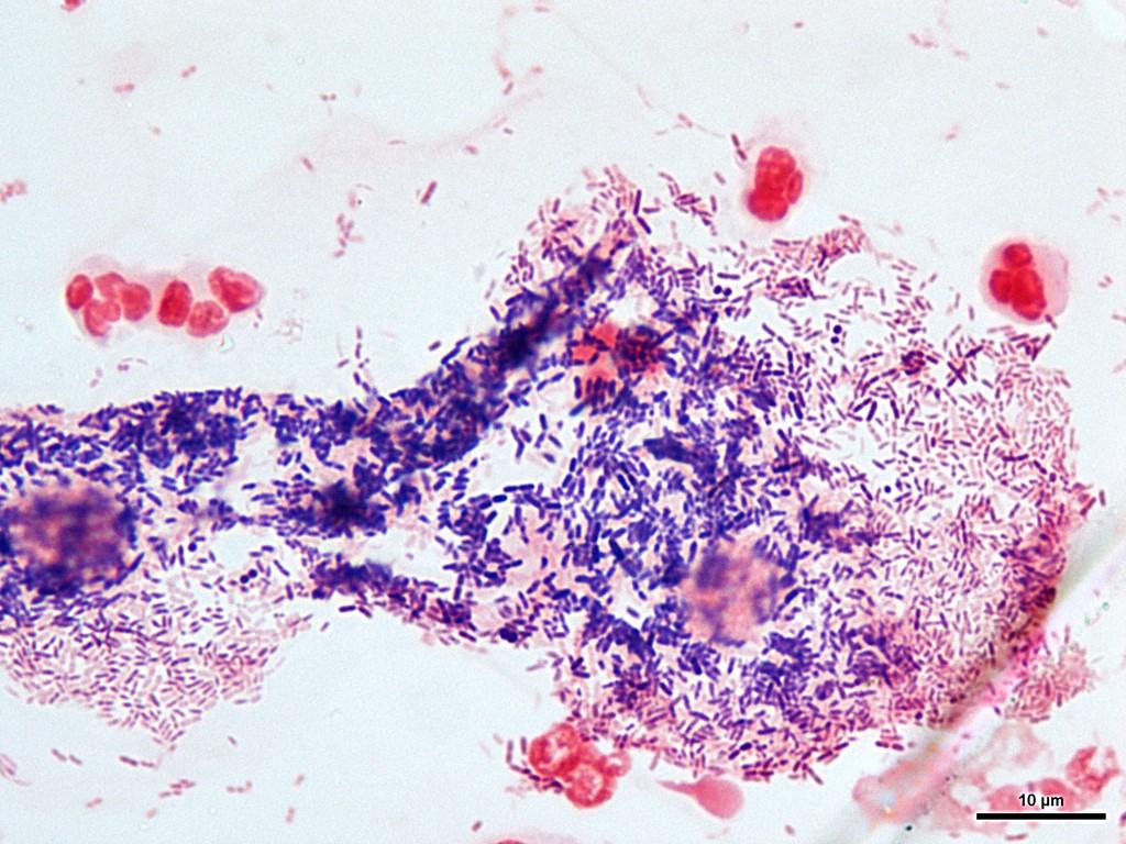 gardnerella-vaginalis-u-zhenshin