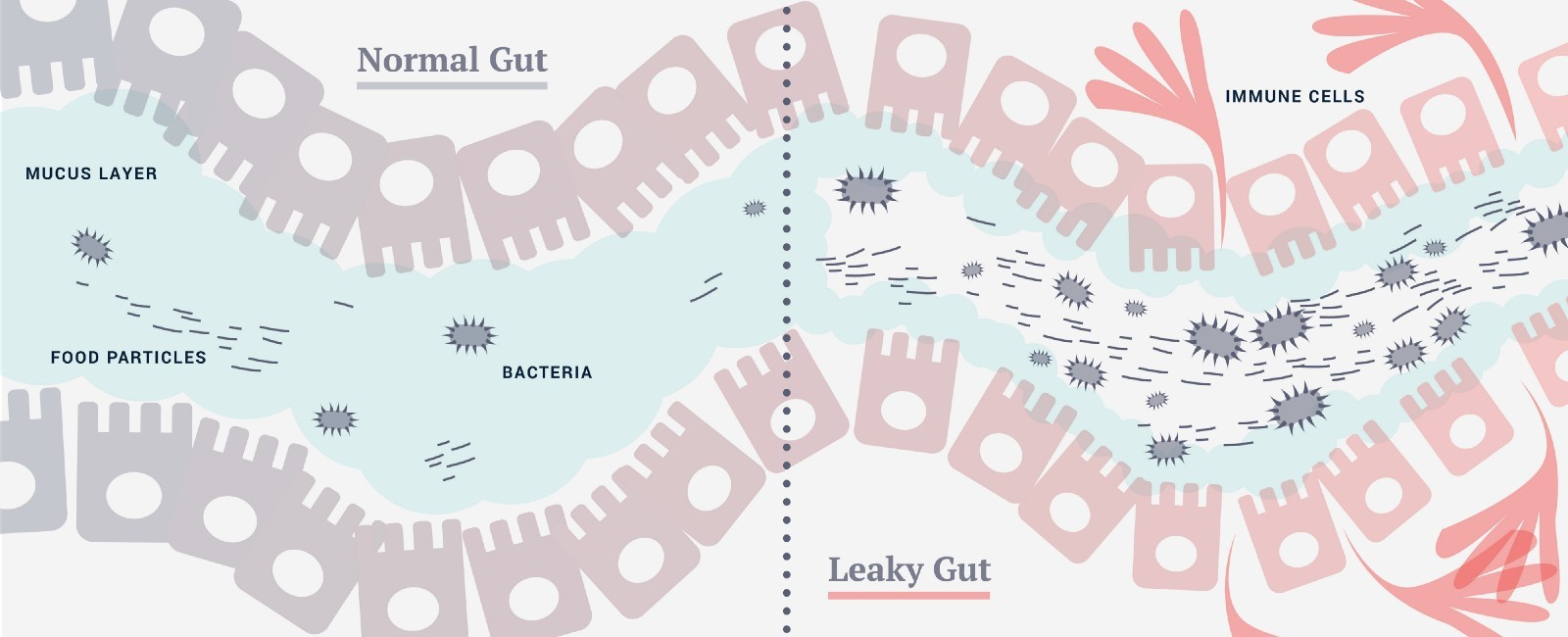 Candida can play a part in weakening intestinal barriers and cause leaky gut syndrome
